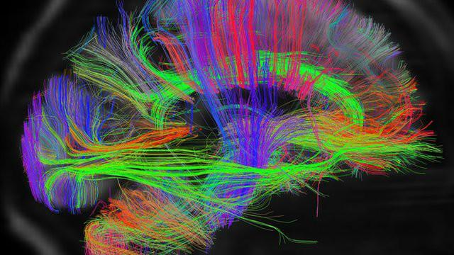 cérebroematividade